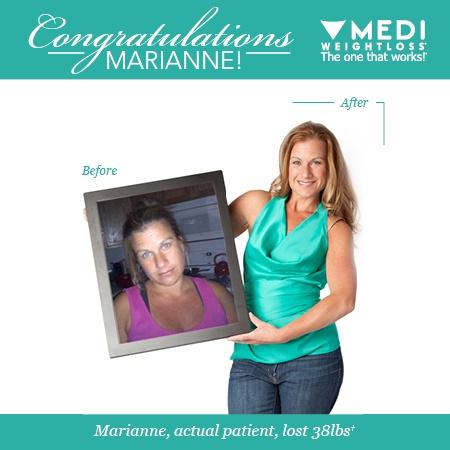 Medi Weightloss Watertown Massachusetts Ma