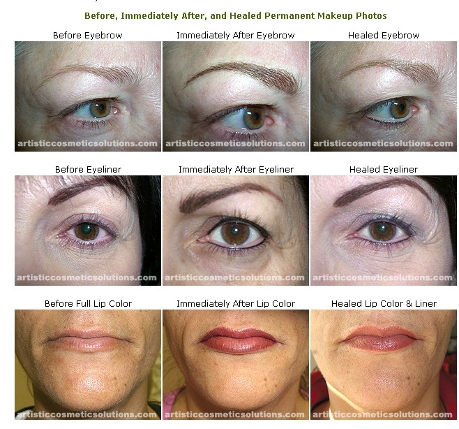 Artistic Cosmetic Solutions image 0