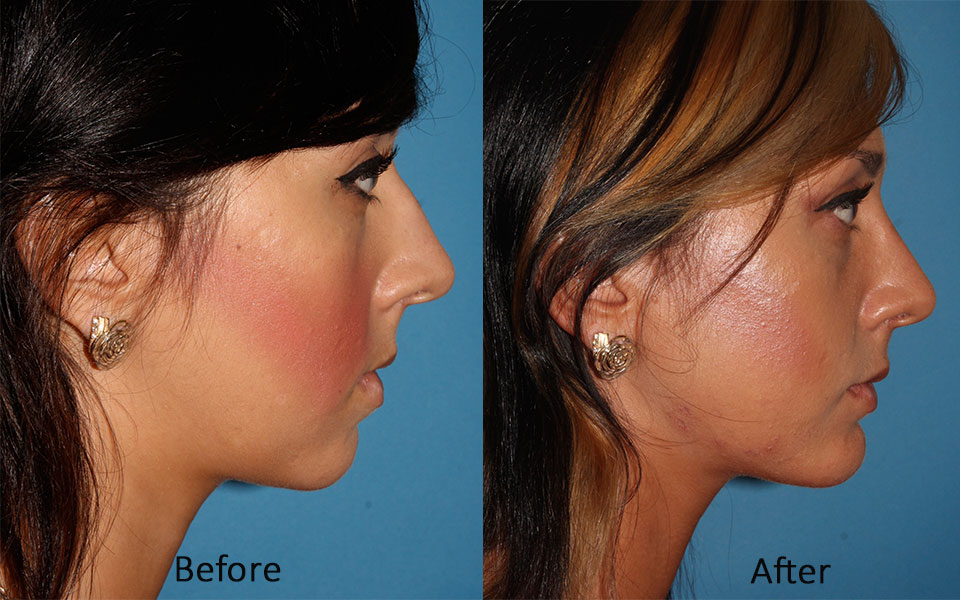 Kenneth Yu Md Facial Plastic Amp Reconstructive Surgery