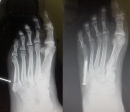 Foot And Ankle Specialists Of Delaware County In