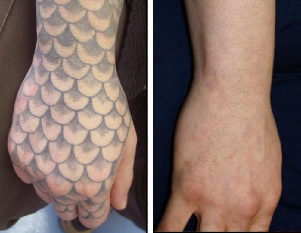 Inkundu laser tattoo removal lexington ky in lexington ky for Tattoo removal service