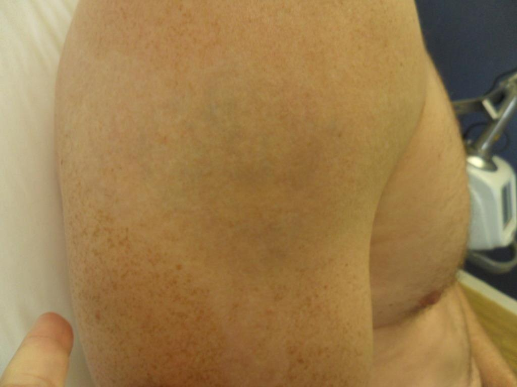 Medermis laser tattoo removal in san antonio tx 78258 for Laser tattoo removal chicago