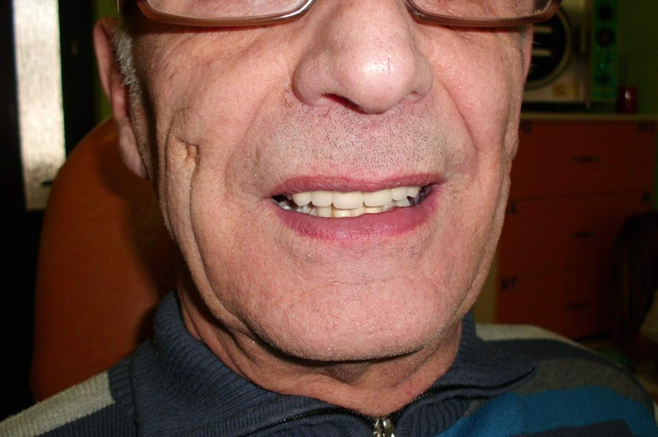 Art-Dent stomatolog, dentysta, protetyk Racibórz. lek. stom. Marcin Krasucki
