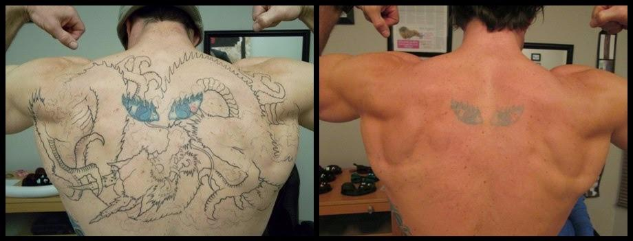 Tattoo removal denver rethink the ink in littleton co for Dallas tattoo removal clinic reviews