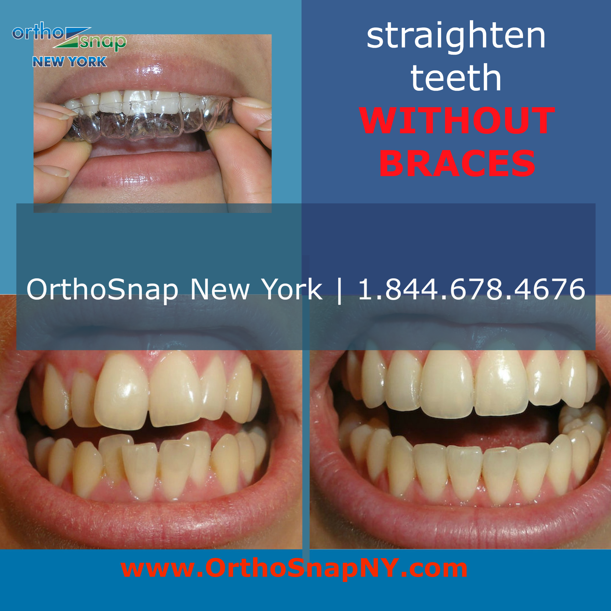 Orthosnap new york manhattan in new york ny 10075 for 11 east broadway 13th floor new york ny 10038