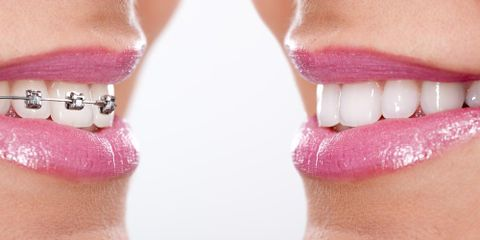 Dentistry vs. Orthodontics: What's the Real Story?