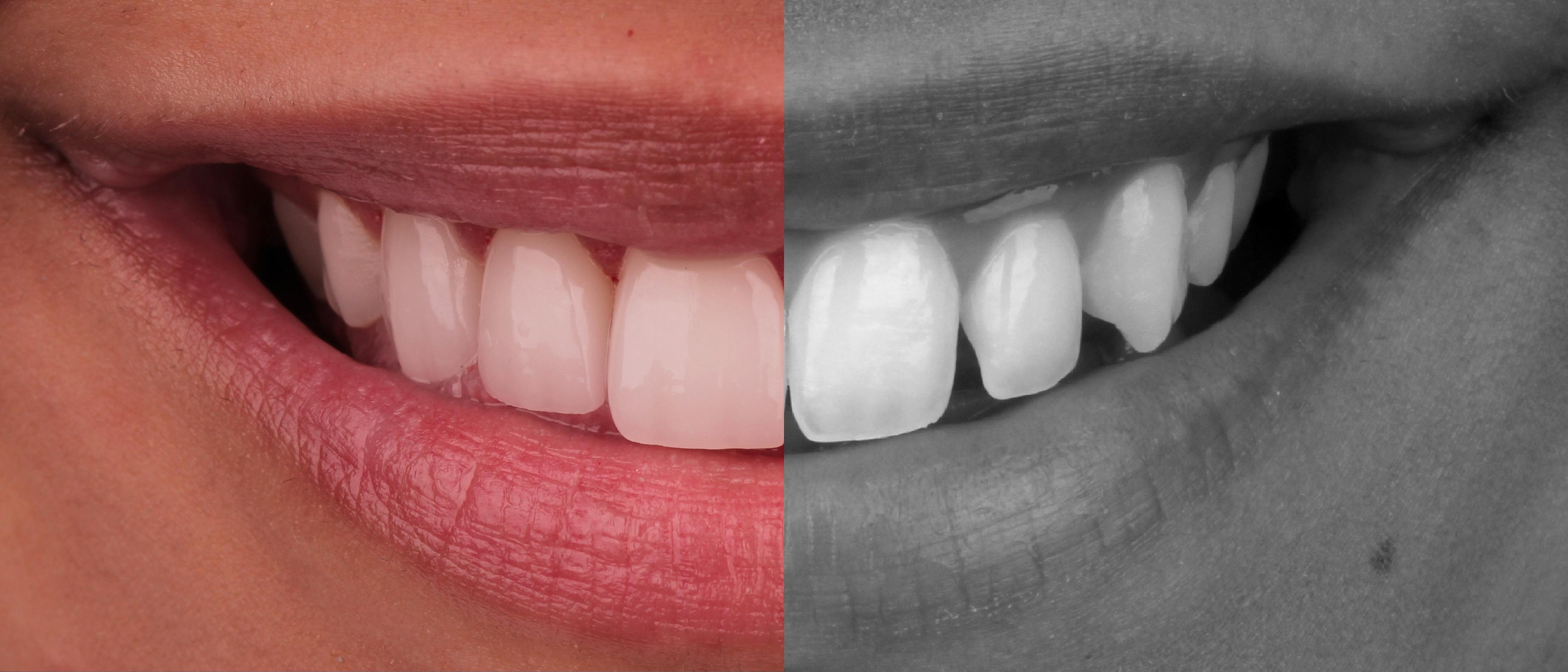 Southwin Dental Care | Memphis, TN