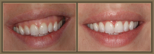 Center for Exceptional Dentistry image 3