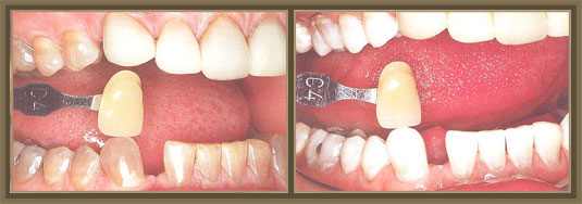 Center for Exceptional Dentistry image 2