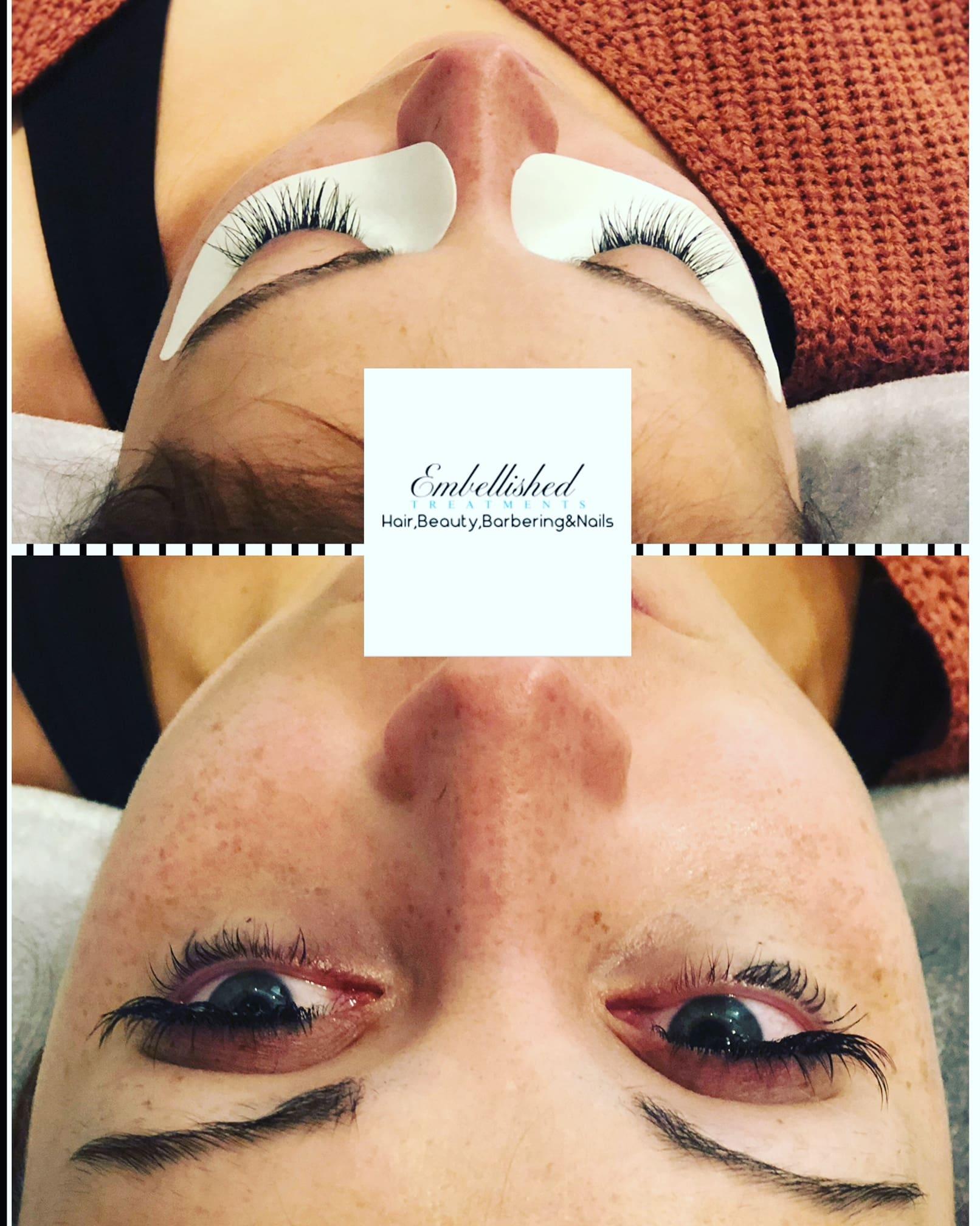 Embellished Treatments