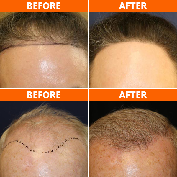 PRP hair treatment in San Diego helps restore and stimulate hair growth by injecting your natural occurring blood platelets into the area(s) of your scalp where there is hair loss. PRP hair restoration therapy can help regenerate your hair follicles without the need for surgery.