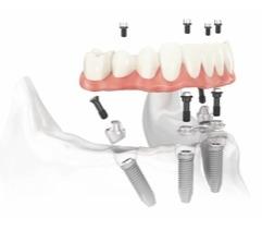 By Design Dental Implant Center