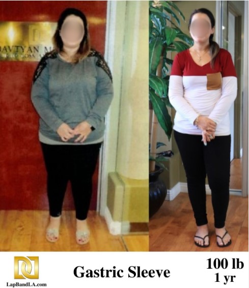 The Weight Loss Surgery Center of Los Angeles