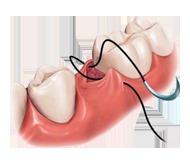 Dent-Med Materials BV