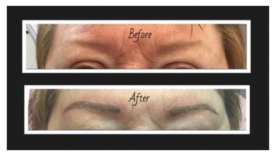 Enduring enhancements columbus ohio oh for Tattoo removal columbus ohio cost